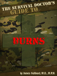 cover-survival-book-burns
