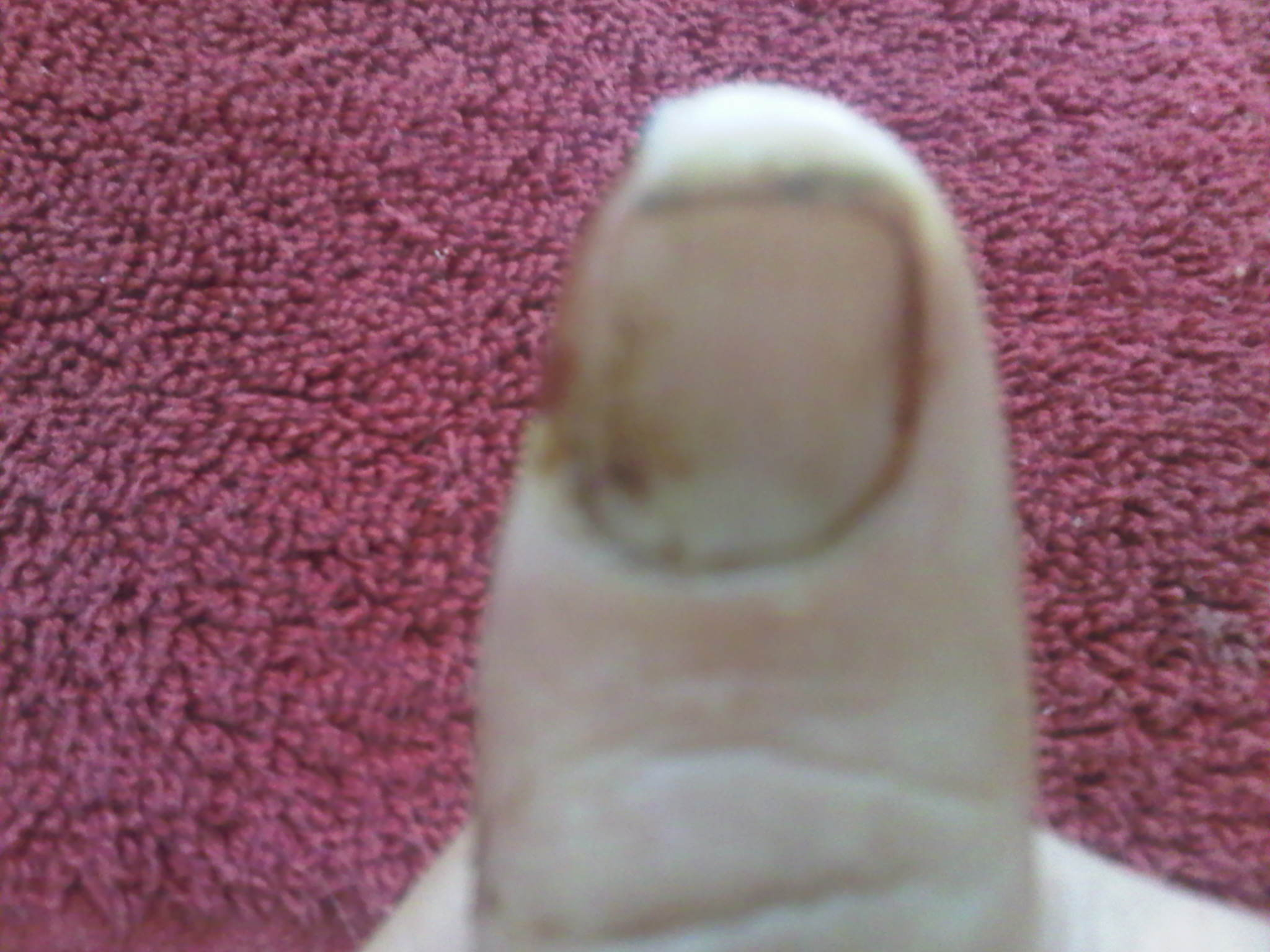 thumb front view